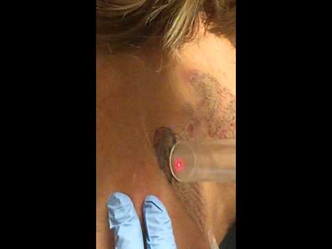 Versapulse laser tattoo removal Session #1 Gateway Aesthetics May 14th, 2015