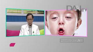 Dr. Carlo Oller, emergency physician, talks about croup..