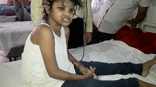 Girl Found Living With Monkeys in a Forest in India