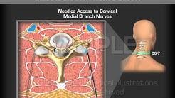 Image Guide Cervical Medial Branch Nerve Block