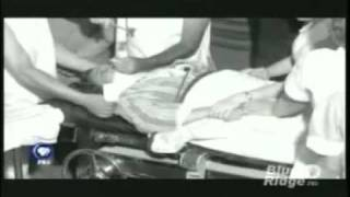 Lobotomy - PBS documentary, on Walter  Freeman.mp4