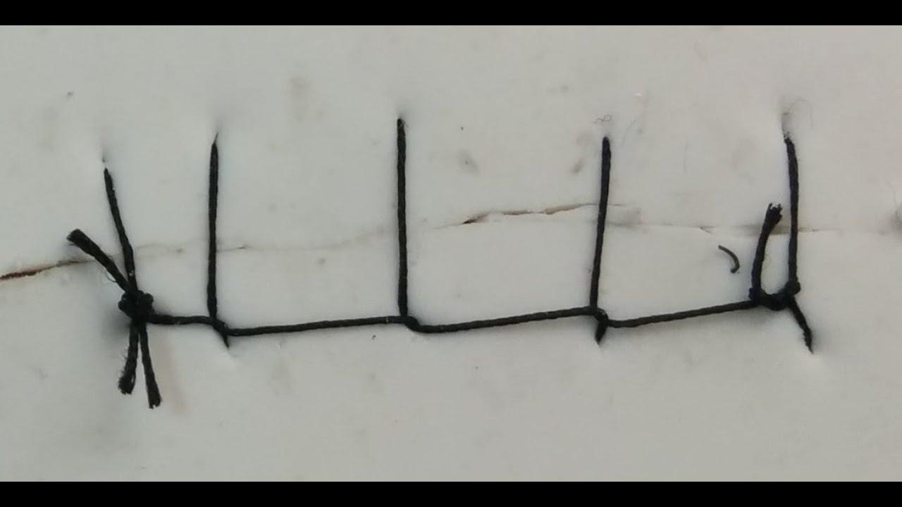 suture patterns