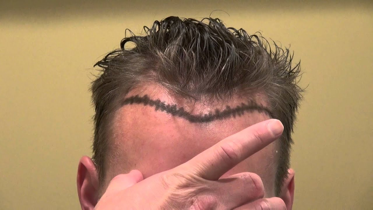 haircuts for frontal balding bald receding hairline hair transplant restoration 3978
