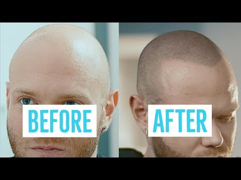 hair-loss-solution---before-and-after