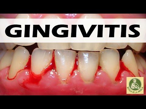 Gingivitis– Remedios caseros para la gingivitis - Como eliminar la gingivitis
