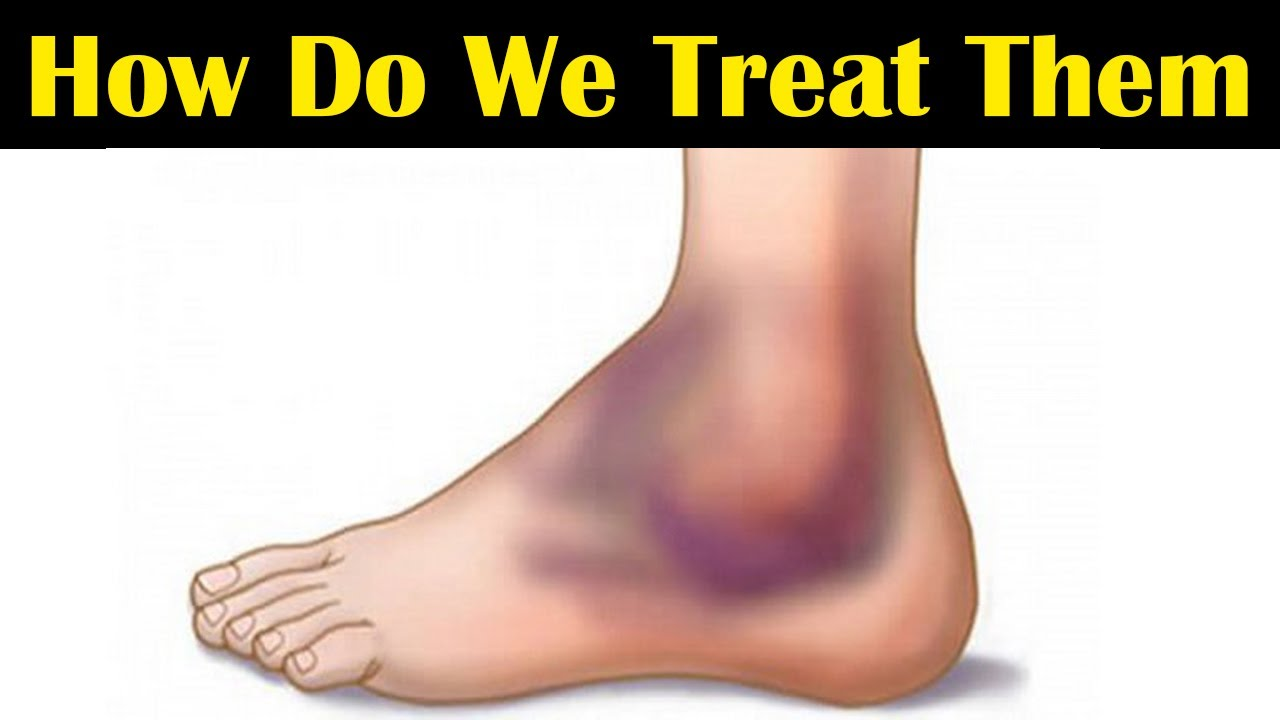 Sprains: Why Do They Happen? How  do We Treat them