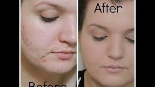 My Foundation Routine (Covering Spots/Acne) | LiddieLoo Thumbnail