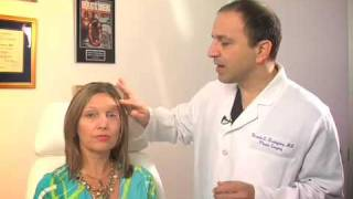 The Brow Lift is the new Eye lift |  Dr. Rodriguez in Baltimore