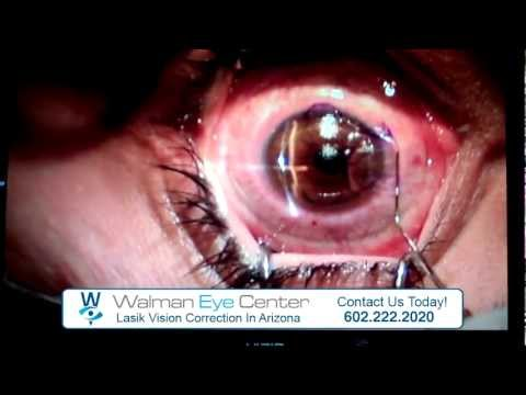 Lasik Vision Correction at Walman Eye Center | Phoenix, Arizona