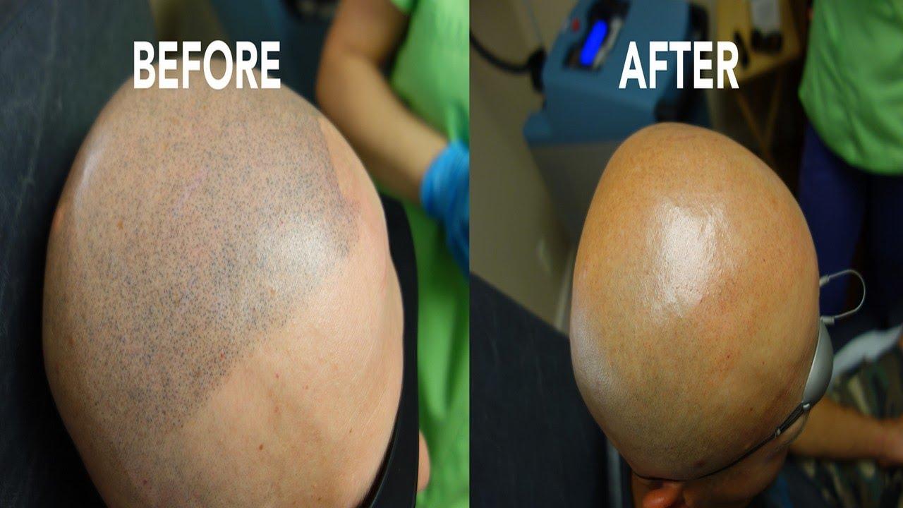 Tattoo Removal Louisville Ky - YouTube