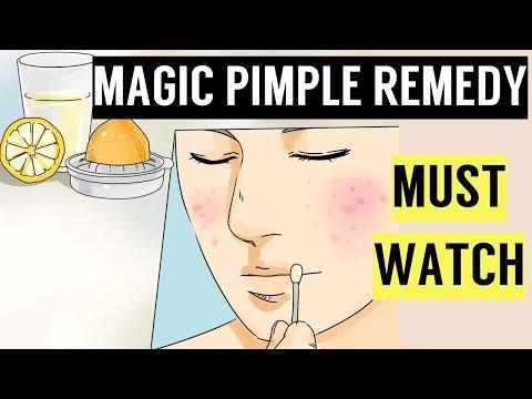 Magic Pimple Remedy | Ramsha Sultan