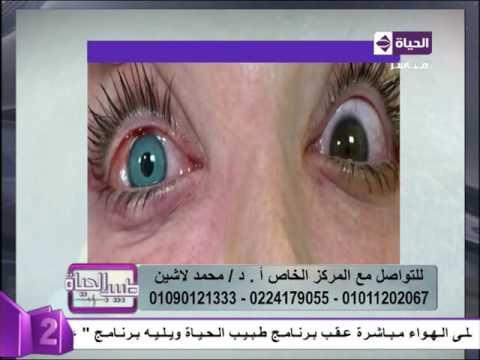 cd5212ff8 طبيب الحياة - أ.د/ محمد لاشين إستشاري طب و جراحة العيون .. تغير لون ...