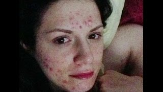 PROACTIV RUINED MY SKIN GETTING RID OF SEVERE CYSTIC ACNE DEALING WITH HYPERPIGMENTATION ACNE SCARS