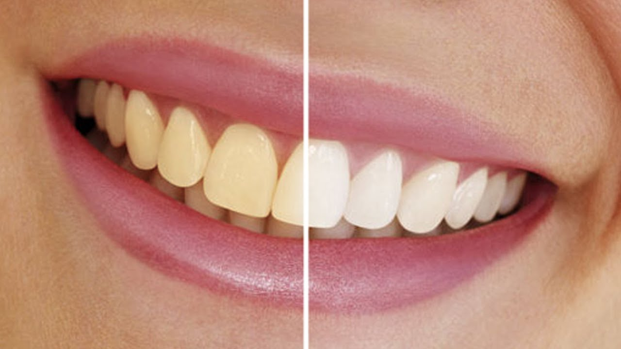 Clareando Os Dentes Como Photoshop Cs6 Cc Youtube