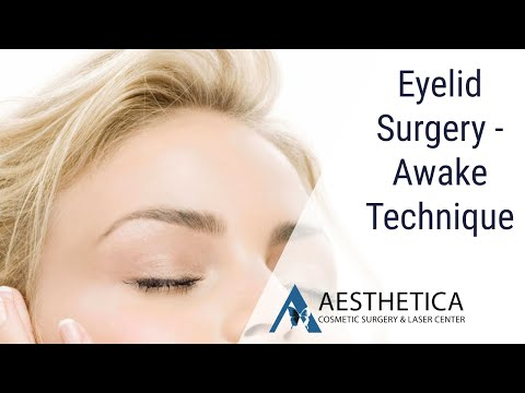 Eyelid Surgery - Awake Technique - Phillip Chang MD