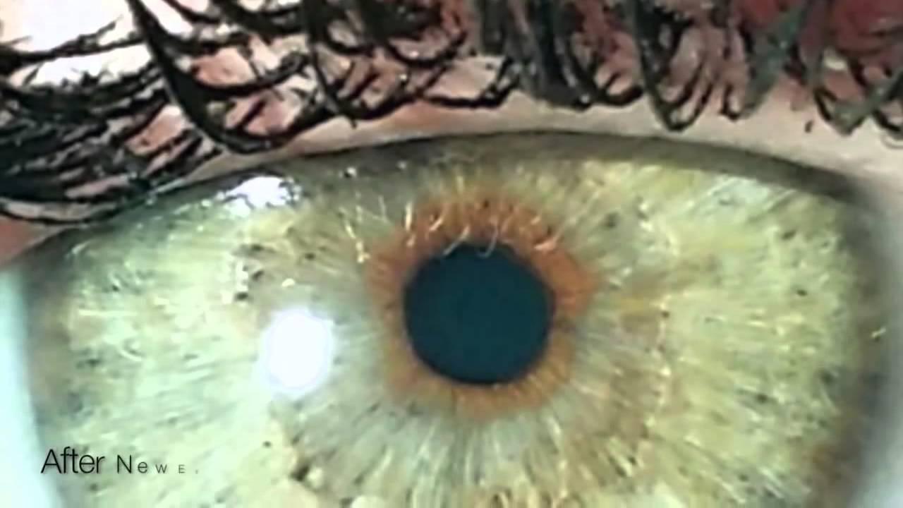 Операции по изменению цвета глаз с карего на голубой