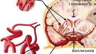 координация, работа мозга, профилактика инсульта, гормоны консультация психолога по скайпу(, 2015-03-08T11:16:57.000Z)