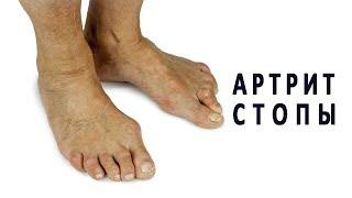 Все об артрите суставов стопы