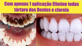 COM APENAS 1 Aplicação ELIMINE TODOS Tártaro DOS DENTES E CLAREIA