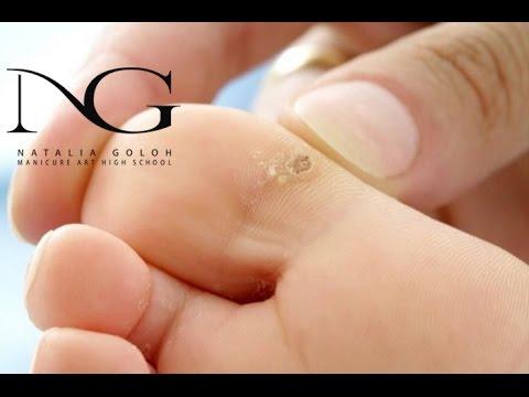 На пальце ноги появился бугорок с дырочкой и болит