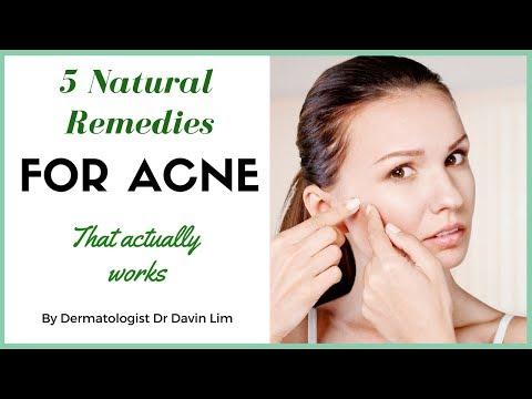 hqdefault - Acne Treatment B Dermatologist
