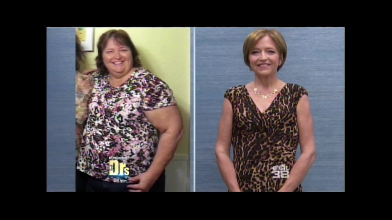 Doctors Show Gastric Bypass Hypnosis With Rena Greenberg Youtube