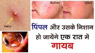 मुहांसे और उसके निशान हो जायेंगे एक रात में गायब। How To Remove Pimples Overnight | Acne Treatment