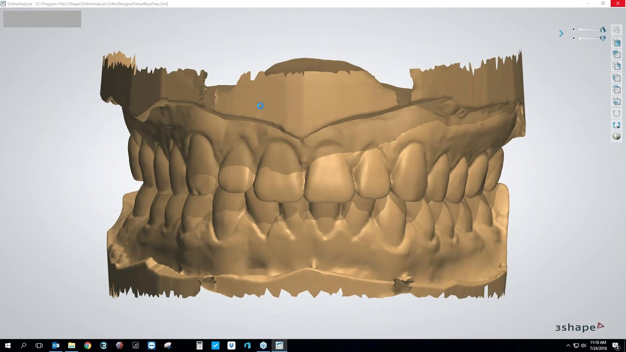 [Webinar] Making Clear Aligners Using the 3Shape Ortho System Module with  Brandon Smith, CDT
