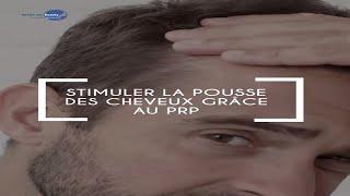 Les injections de PRP dans le cuir chevelu permettent de ralentir la chute des cheveux