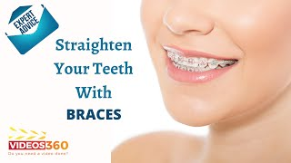 Now Trending - What are the kinds of Braces available? Dr. Stan Kovtun from Alpha Plus Dental Center Explains