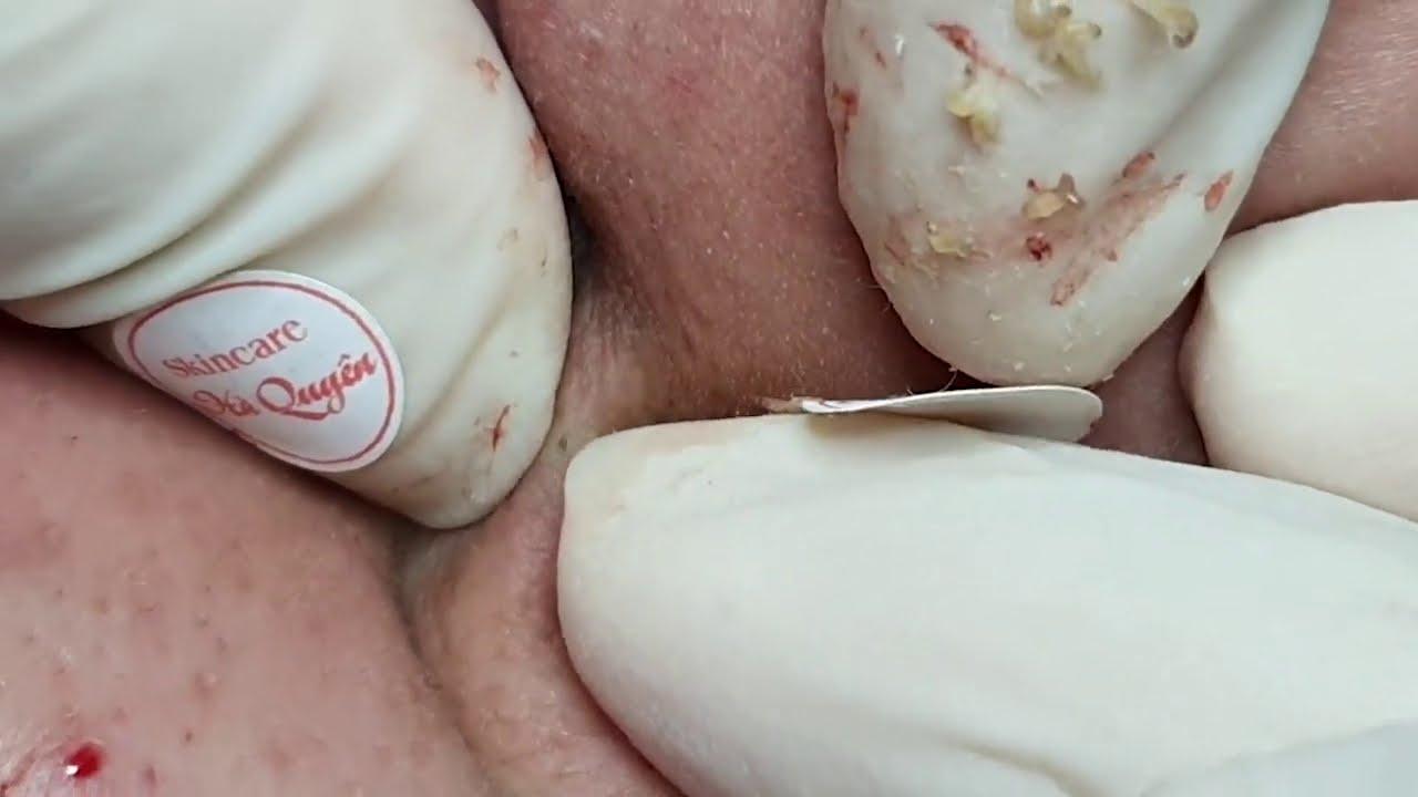  309 Blackheads & Acne treatment in Ha Quyen Spa on 24/10/2020 Part 2 -Điều trị mụn tại Hà Quyên spa