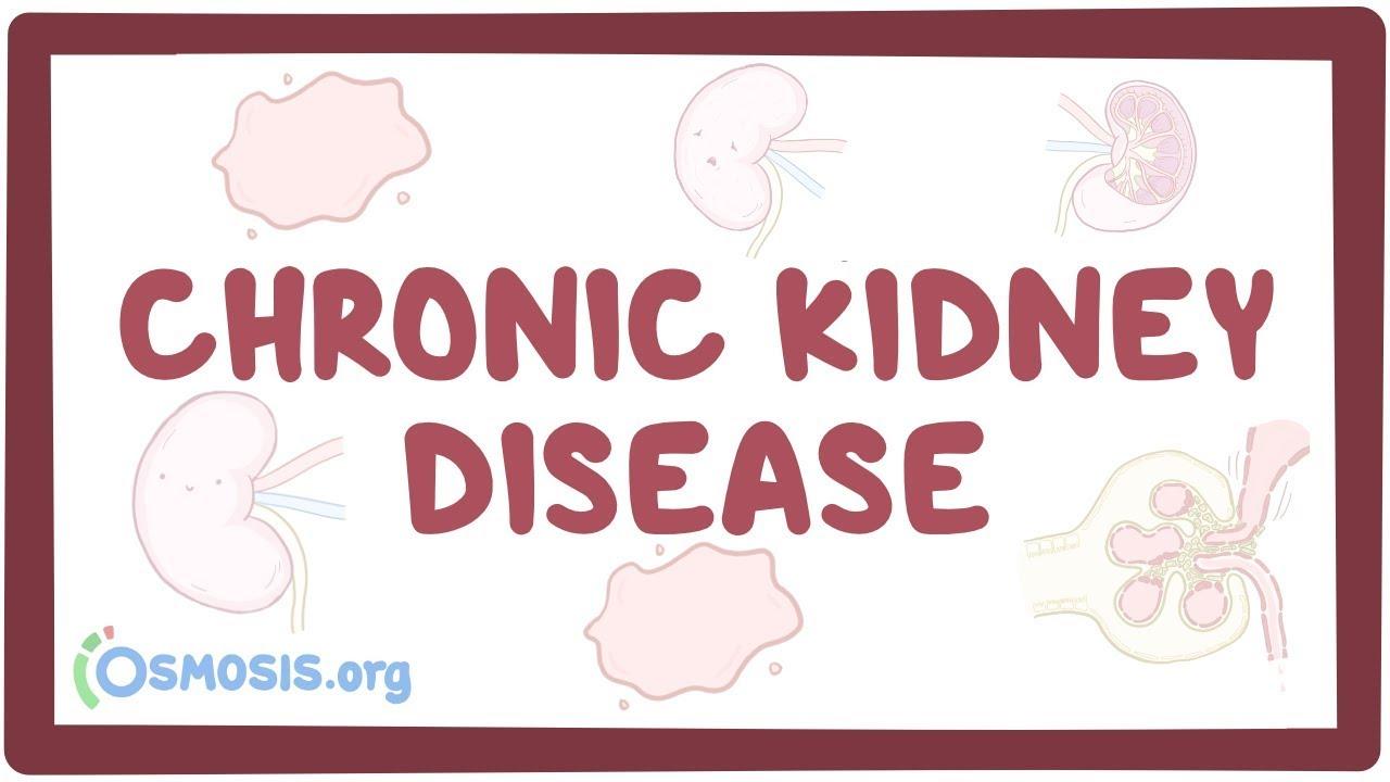 Chronic kidney disease - causes, symptoms, diagnosis, treatment, pathology