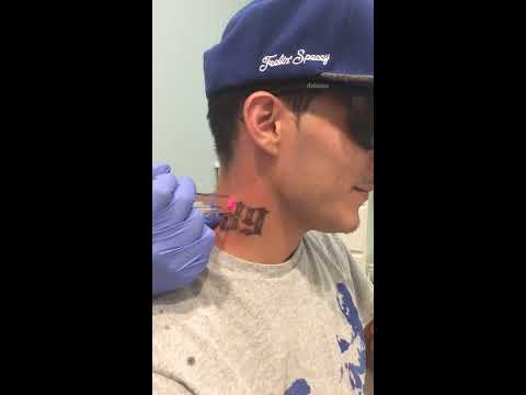 Fresh Start Laser Clinic | 89 Neck Tattoo Removal Austin TX