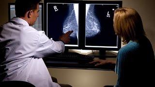 الصفات الجينية تحدد نوعية العلاج وترفع نسب شفاء سرطان الثدي