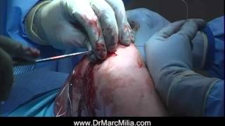 Patella Stabilization Surgery