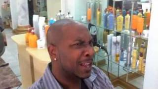 Mr. A- One Year update after FUE for hair loss on balding black men- hair follicle simulation | SMP