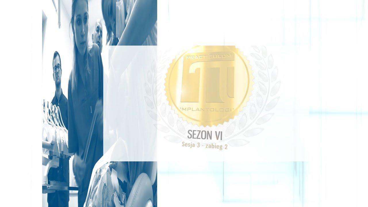 PRACTICULUM IMPLANTOLOGII SEZON VI  SESJA 3  ZABIEG 2