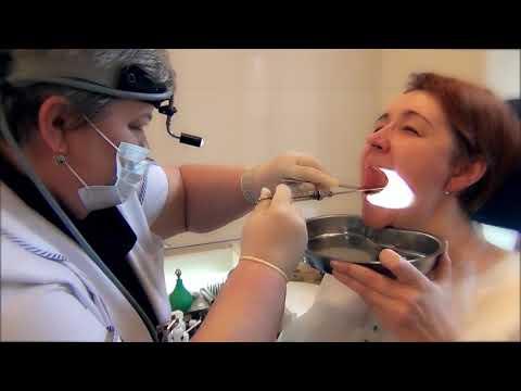 Диагностика и лечение хронического тонзиллита в ОН КЛИНИК