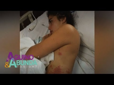 Anne Curtis stung by jellyfish during
