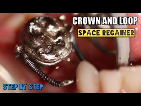 crown-and-loop-space-regainer-|-step-by-step