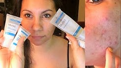 hqdefault - How Long Does It Take For Murad Acne To Work