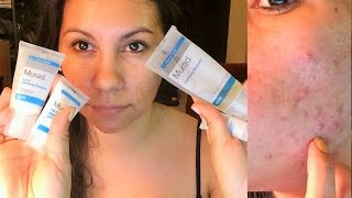 Repeat youtube video MURAD Acne Kit Review -- Two Months Results! (10-08-2014)
