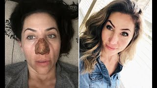 Woman who lived as a recluse after her nose DOUBLED in size due has the skin burned off