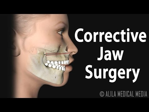 Corrective Jaw (Orthognathic) Surgery, Animation.