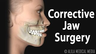 Corrective Jaw Orthognathic Surgery Animation