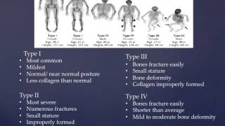 When a Child Has Osteogenesis Imperfecta (OI) - Dr. Jessica McMichael.
