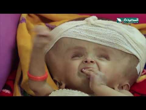 سنابل الخير - الطفلة رشا ذات الأشهر التسعة والتي تعاني من سوائل الدماغ 28-9-2020م