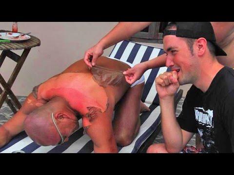 Worst Sunburns on Earth!