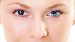Get Heterochromia in 5 minutes - Different Colored Eyes - Bi...