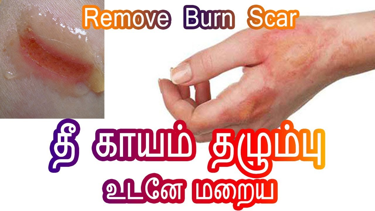 Review Of Contractubex Scar Treatment Gel Tamil By Clickoncare Com
